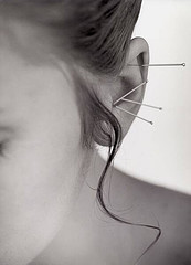 acupuntura-para-adelgazar