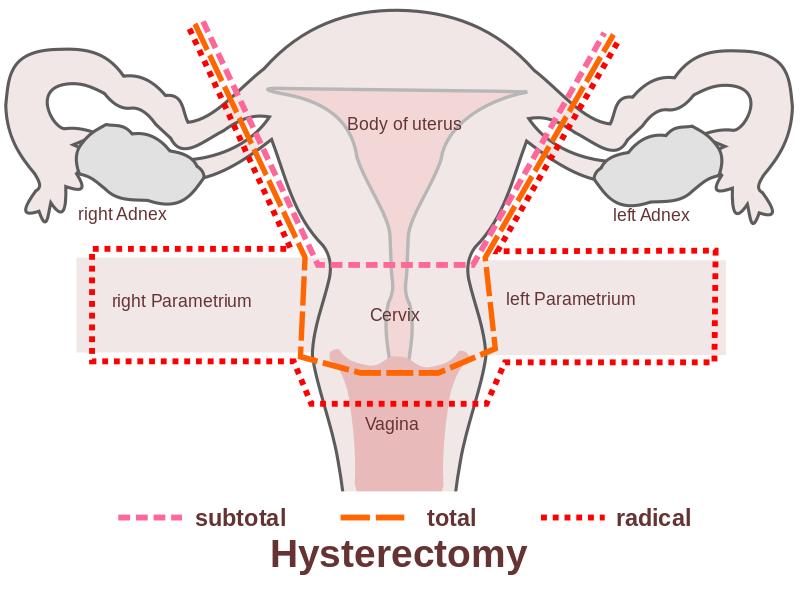 Histerectomia cesarea